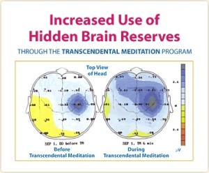 chart-brainReserves